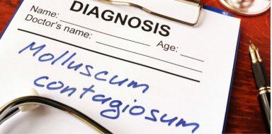 Molluscum contagiosum is a virus found in toddlers.