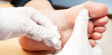 a doctor treating a foot wart