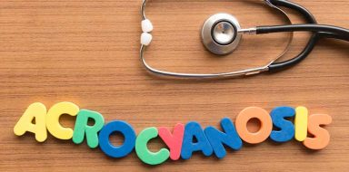 Acrocyanosis spelt out with colorful letters under a stethoscope against a light brown, wood background.
