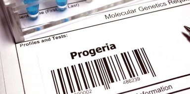 "A barcode reading ""progeria""."